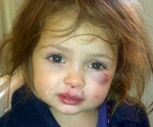 Two Year-Old Girl Beats Up Three-Year Old