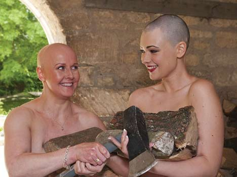 women with no hair pose for nude calendar raising funds for Alopecia UK