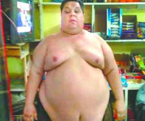 Iraqi man loses 30 kg weight after surgery in delhi.
