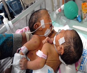 conjoined twins sharing a heart