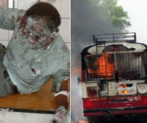people severly burnt in bus accident up
