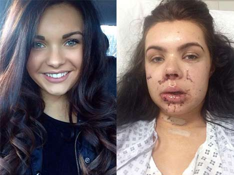 This beauty 'unable to smile' after horrific accident