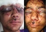 in pictures, hamid suffers vision damage, after being hit by pellet gun in srinagar