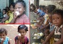 The eggs were given to children in AWCs in jharkhand