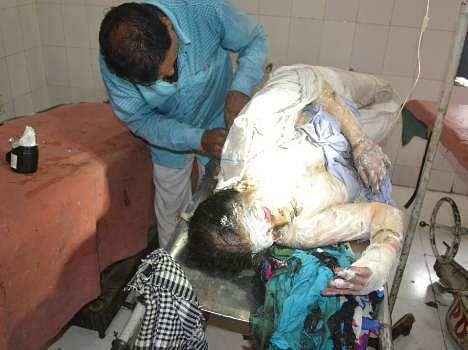 A woman set fired in Barabanki.