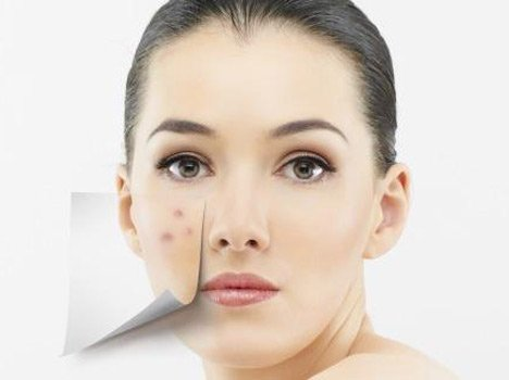 Home Remedies To Get Rid Of Dark Skin Patches च हर क