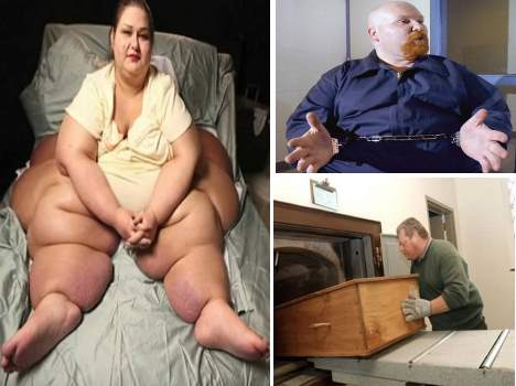 obesity: when you are too fat too..