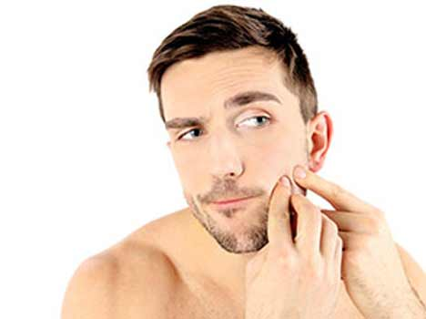 Home Remedies for Black Heads in Men