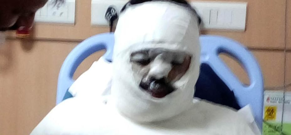 Husband threw acid on sleep, lock wife fled