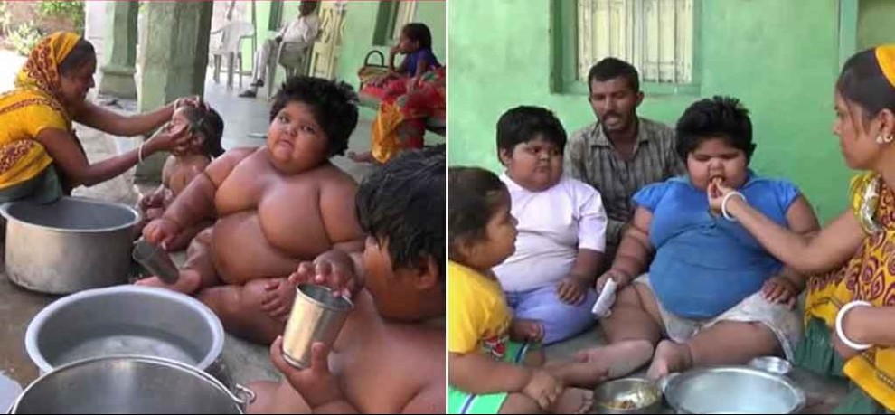 'Sumo kids' who underwent surgery to lose weight are piling on the pounds