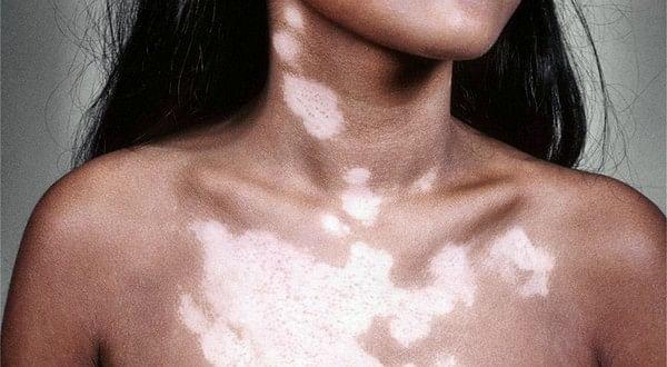 Image result for सफेद दाग त्वचा