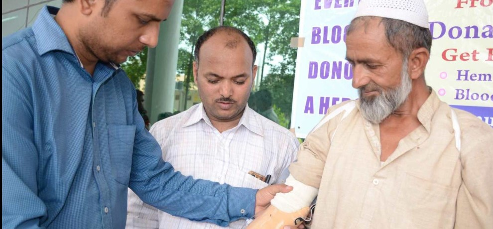 amar ujala and indresh hospital distributed Artificial limbs