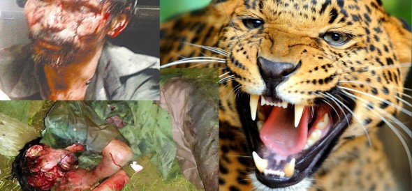 madan fought with leopard and saved life.