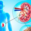 These 6 Food Items Can Cause Kidney Stone