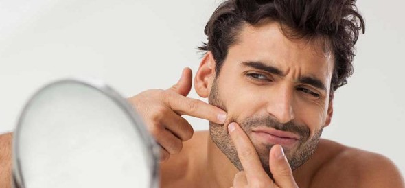 Tips To Cure Pimples
