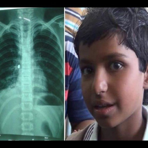 Toy battery found in child's body, operations in rohtak pgi