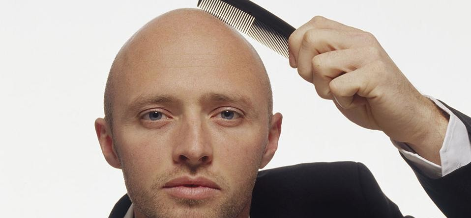 If baldness troubles you then this ginger remedy can solve your problem