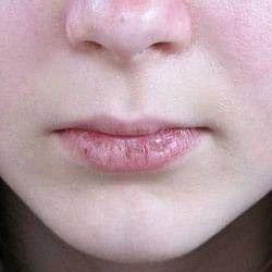 फटे होंठ से छुटकारा पाना चाहते हैं? ये नुस्खे आजमाएं