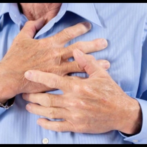 these are the symptoms of heart attack