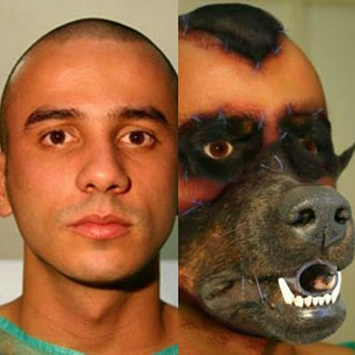 Dog Eye Transplant To Human