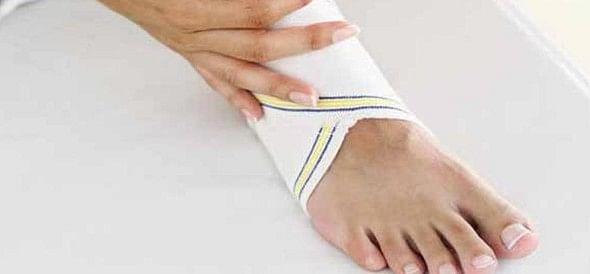 home remedy for sprain