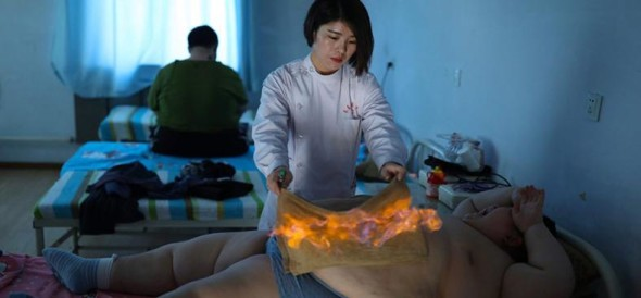 11 year old set on FIRE and undergoes cupping treatment