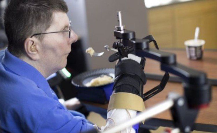 Brain implant lets paralysed Cleveland man feed himself using his thoughts