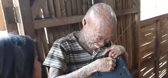 filipino man with a rare skin disease looks like ghost