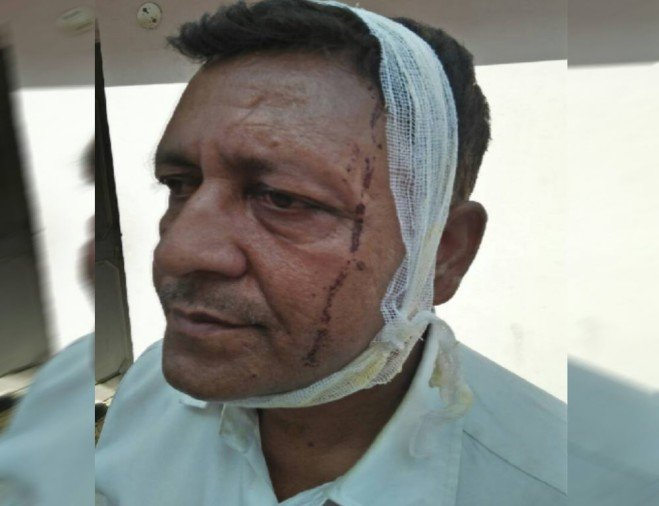 ex minister head injured in bus accident