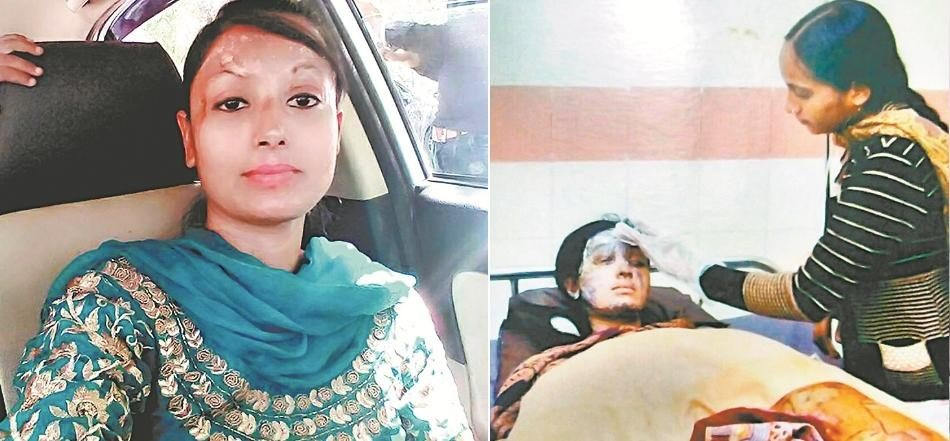 Story of an acid attack victim, Kapurthala daljeet kaur