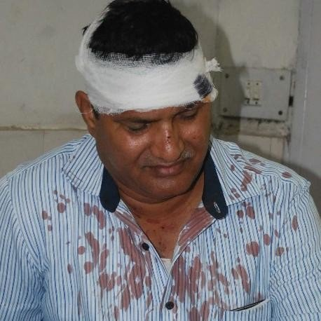 Attack on electricity workers, haryana news