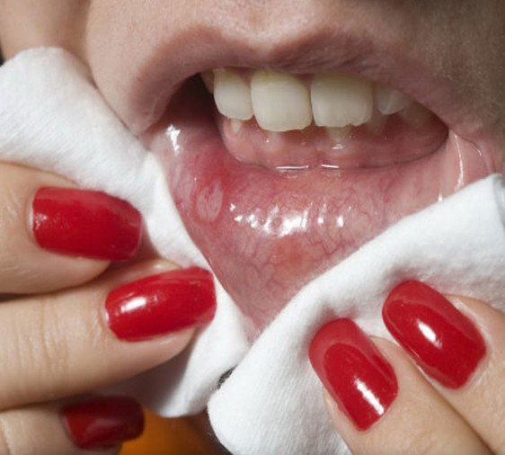 Amazing homemade treatment for mouth ulcer