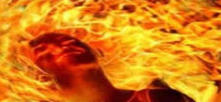 Women burnt for Dowry
