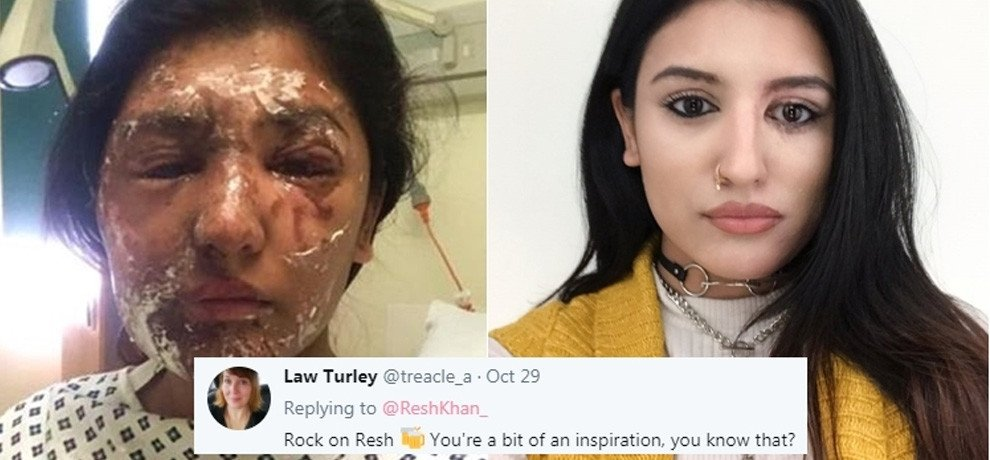 acid attack survivor and model shares her photos on social media