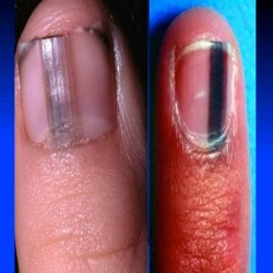 There are some signs in your nails that tells you may be in danger