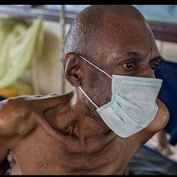 इस साल मिले 15 लाख से ज्यादा टीबी के केस, यूपी सबसे ऊपर: हेल्थ मिनिस्ट्री