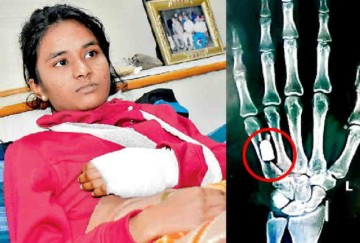 gun bullet found in ludhiana girl finger