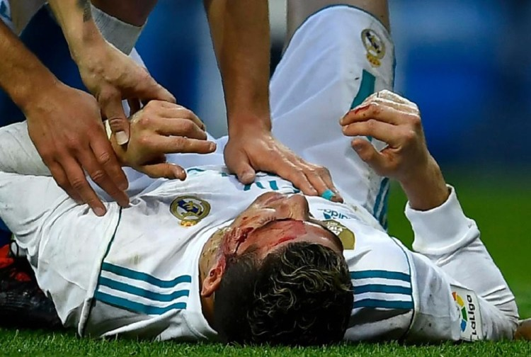 Cristiano Ronaldo injured on ground in la liga league