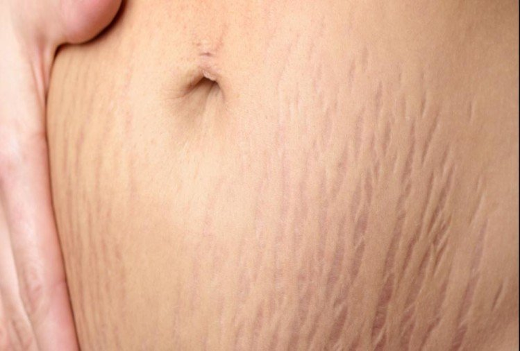 get rid of stretch marks with this easy remedy of coffee