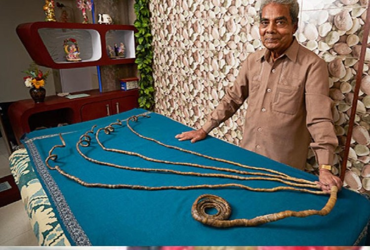 Shridhar Chillal's hand became lifeless after creating world record