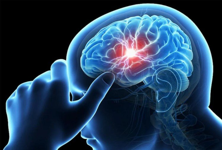 Stress Strokes And Paralysis: What You Need To Know - स्ट्रोक