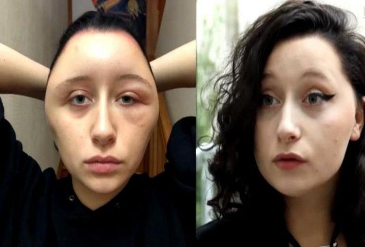Image result for खूबसूरत दिखने की चाह में कुछ ऐसा कर बैठी युवती, अंजाम खतरनाक
