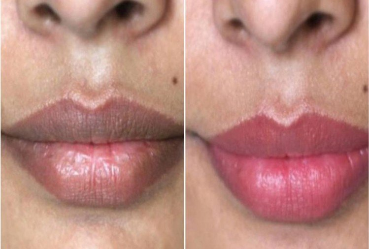Tips to turn your black lips into soft and pink colour naturally