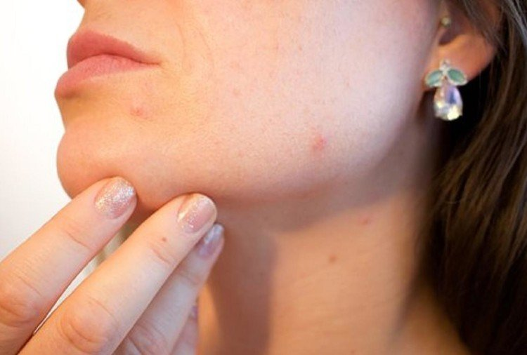 home remedies to remove pimple scars on face