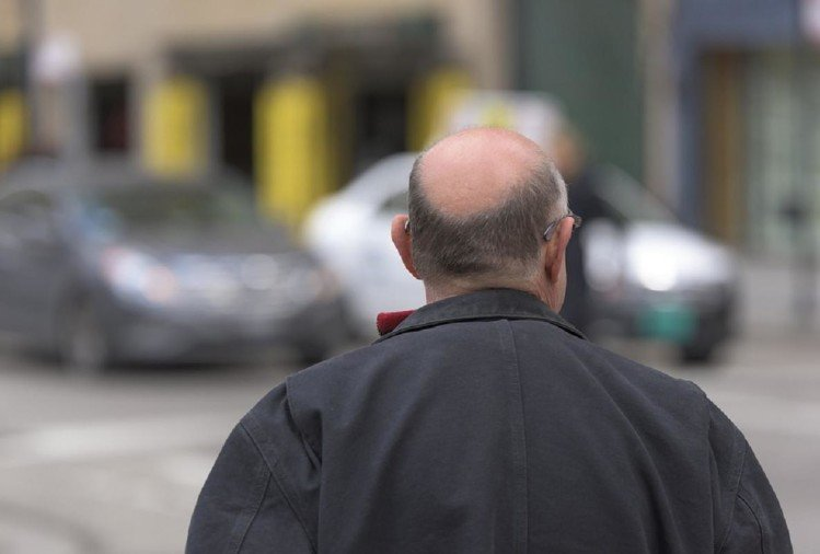scientists invented electric cap that ends baldness in men