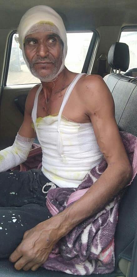 14-जानसठ के गांव सालारपुर में फैक्टरी में बॉयलर फटने से घायल मजदूर।
