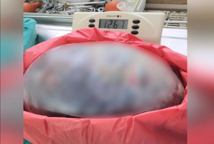 12.67 kg rasauli extracted from the woman's stomach at igmc shimla