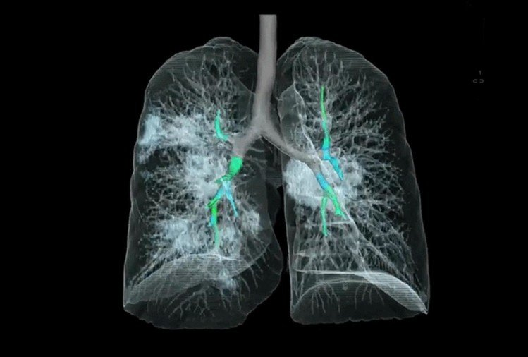 Lungs Giving Warning Of Covid 19 Infection, Identify These Symptoms - सतर्क हो जाएं: सांस लेने में हो रही है दिक्कत, यानी फेफड़ों में पहुंचा है संक्रमण - Amar Ujala Hindi News Live