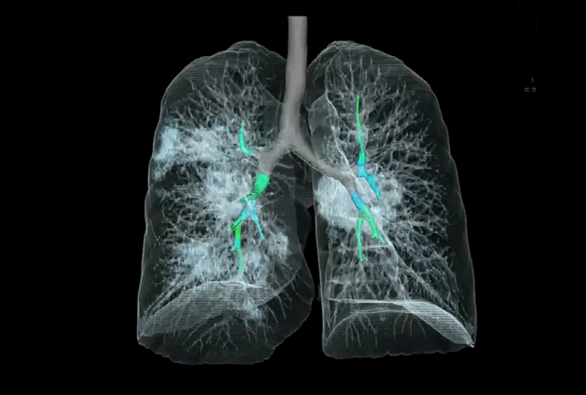 Coronavirus Infected Lungs 3d Image Latest News Live Updates - कोरोनावायरस से संक्रमित फेफड़े की पहली 3d इमेज जारी, डरावनी तस्वीर से सहमी दुनिया - Amar Ujala Hindi News Live