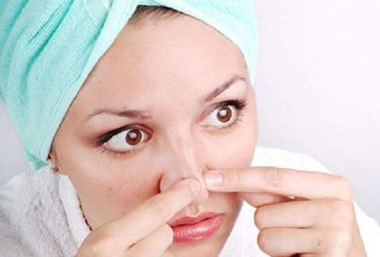 not scrub use these natural tips to get rid of blackheads